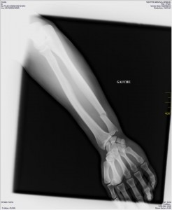 Broken bones for UK victory